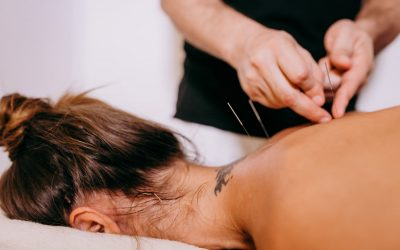 What Are the Benefits of Dry Needling?